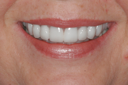 After Full Mouth Restoration Procedure