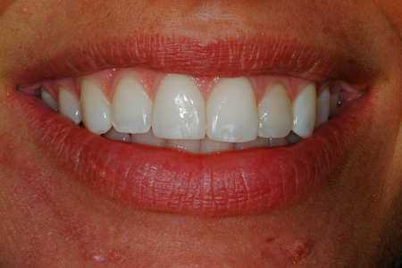 After Full Mouth Restoration and Occlusal Rehabilitation Procedure