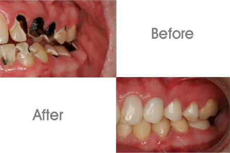 Before and After Bonding and Restoration Dental Procedure