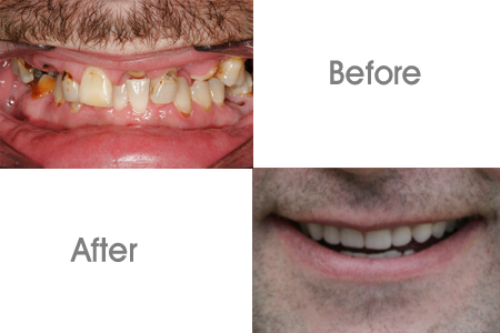 Before and After Denture Procedure