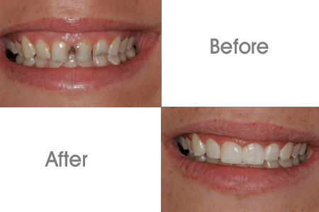Before and After Porcelain Veneers and Cosmetic Dentistry Procedure