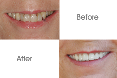 Before and After Dental Crowns Procedure