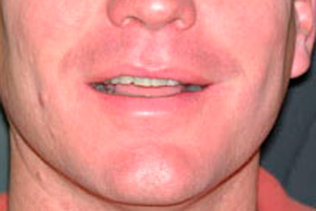 Before Cosmetic Dentistry Procedure