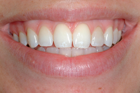 Before Full Mouth Restoration and Occlusal Rehabilitation Procedure