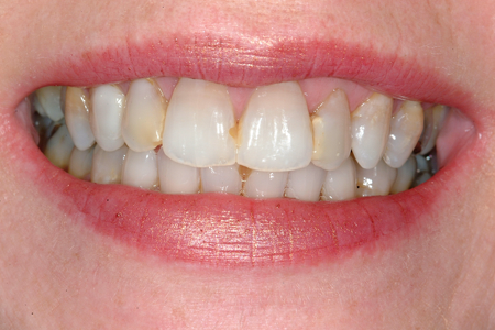 Before Full Mouth Restoration Procedure Photos At Smiles By Dixon